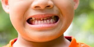 Sugar affects Children's Teeth